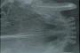 preview: Behandelter Eckzahn Katze Röntgenbild
