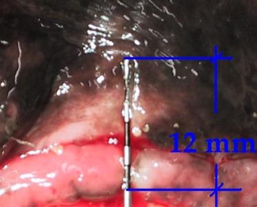 Hund Zahnfleischtaschen Details