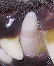 Lila verfärbter Zahn
