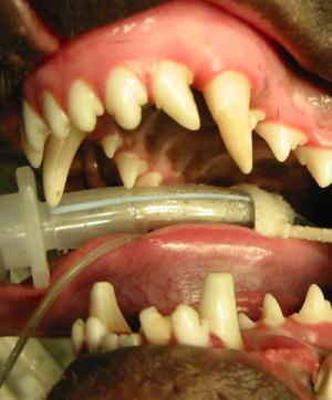 Behandlung von Caninus Engstand durch Vitalamputation