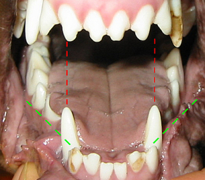 Caninus-Engstand - einbohrende Zahnspitzen