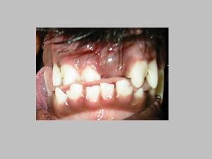 Fehlende Zähne bei Welpen (Hund)
