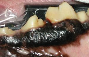 Versteckte lokale Parodontitis - auf kleinste Veränderungen achten