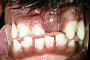 preview: Fehlende Zähne bei Welpen (Hund)