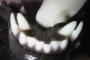 preview: Hund persistierende Milchzähne